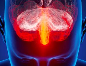 Tumores cerebrales lo que hay que saber