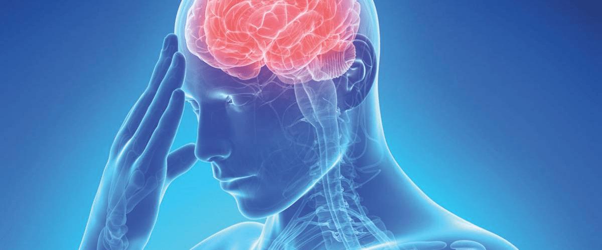 Ictus: Guía para comprender sus síntomas