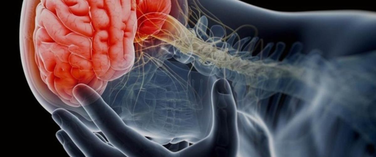 Síntomas persistentes de conmoción cerebral
