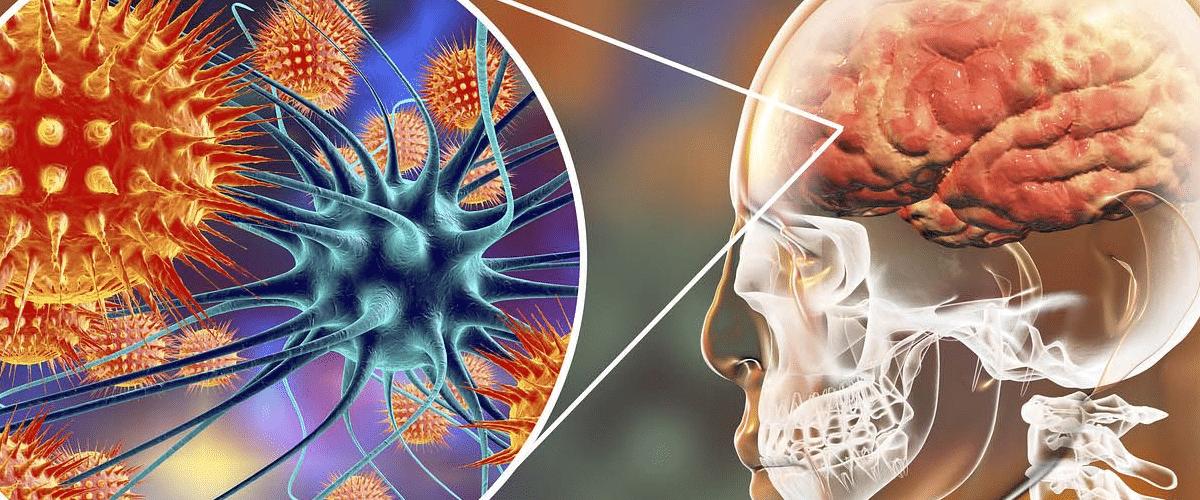 Tipos de daño cerebral: la meningitis