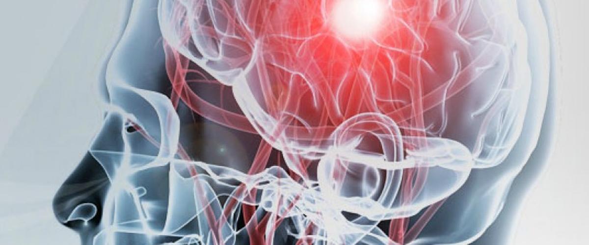 Qué es el síndrome corticobasal