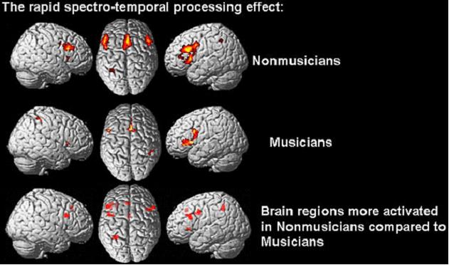 Diagrama del Cerebro Humano