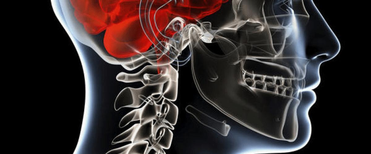 Meningiomas tipos y síntomas