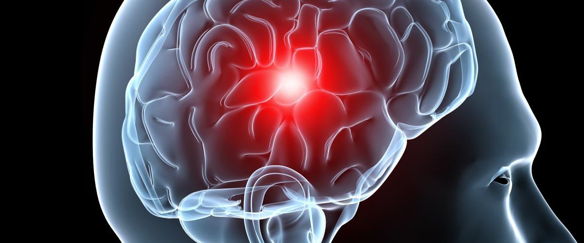 Ictus beneficios de la fisioterapia en la recuperación